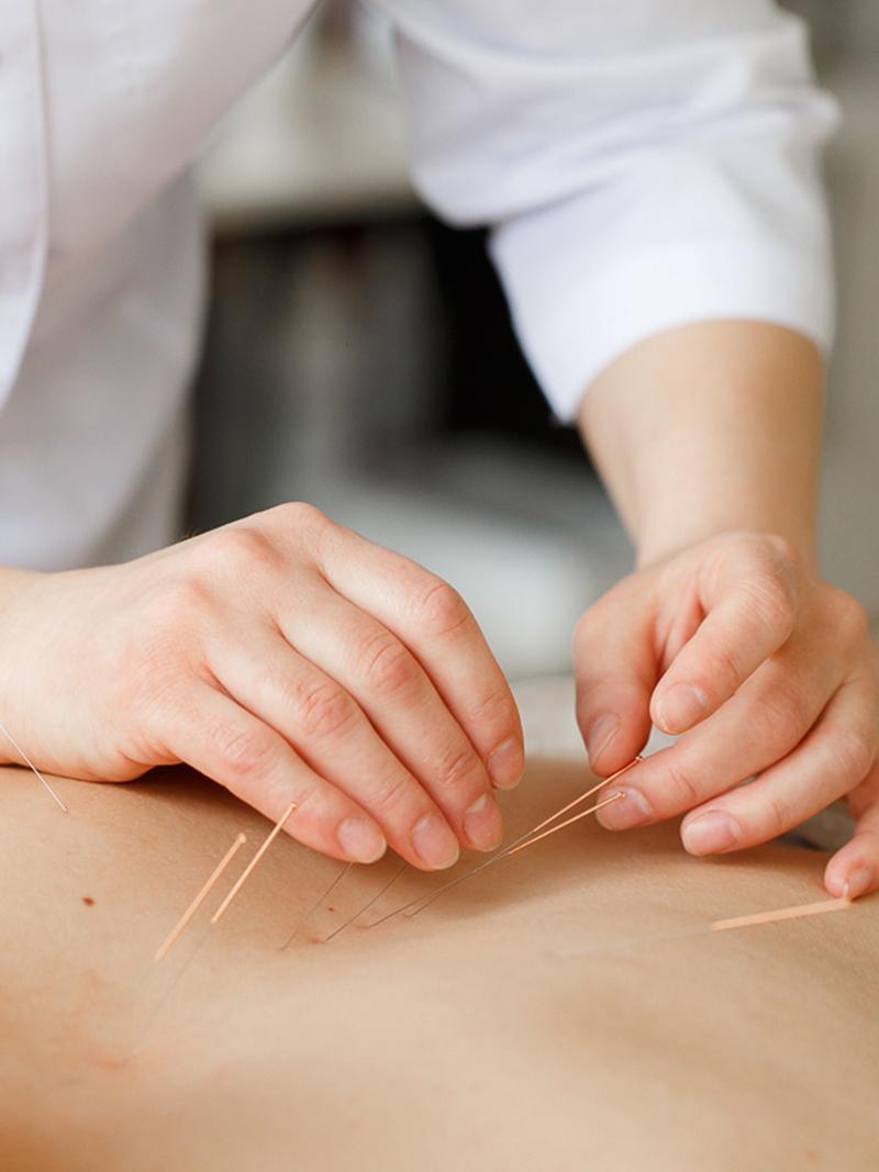 Иглоукалывание для похудения метод фалевая